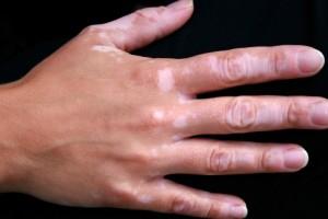 sintomas-tipos-vitiligo